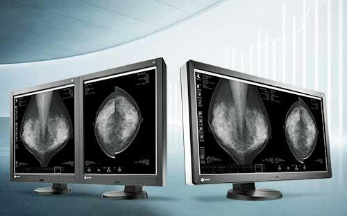 Az Eizo esettanulmánya szerint jobb az egy nagy monitor, mint a több kicsi használata